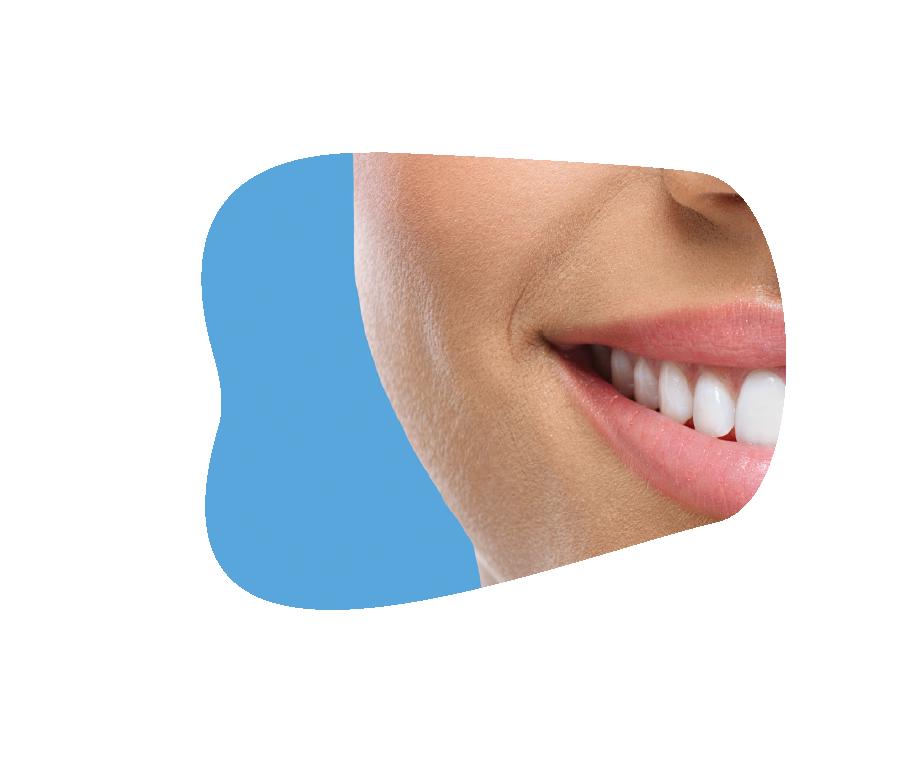 Riofoto Smile